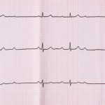 Emergency Cardiology. ECG with atrioventricular block (AV block) II degree type Mobitts I