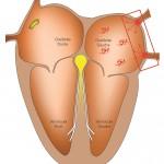 Schéma fibrillation atriale