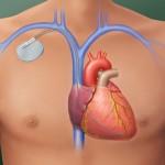 Oberkörper, männlich mit implantiertem Herzschrittmacher